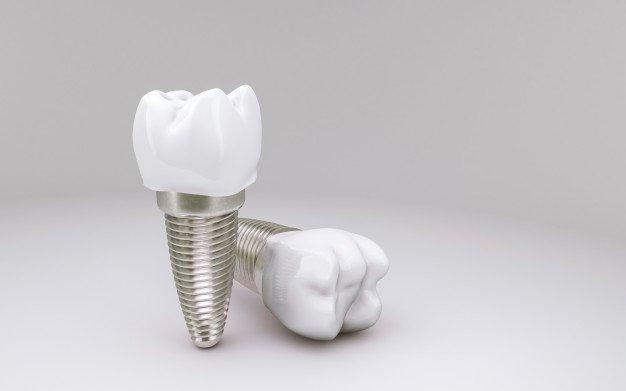 Clinica implantes dentales Getafe